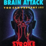 Stroke is a Concern for All Americans, Especially African Americans
