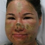 Follow-Up: Acid Attack by 'Strange Black Woman' A Hoax!