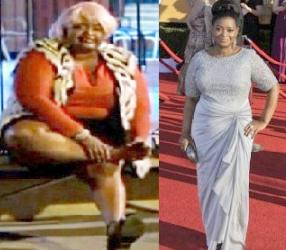 octavia spencer (before &after surgery)