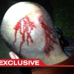 New Photo Claims to Show Zimmerman's Head Bloodied