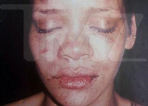 rihanna (beat up face)