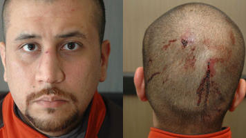 george zimmerman & head injury