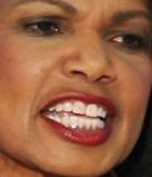 condi rice teeth 2