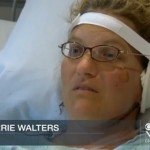 Woman (Sherrie Walters) Grows New Ear on Her Arm to Replace Ear She Lost (Video)