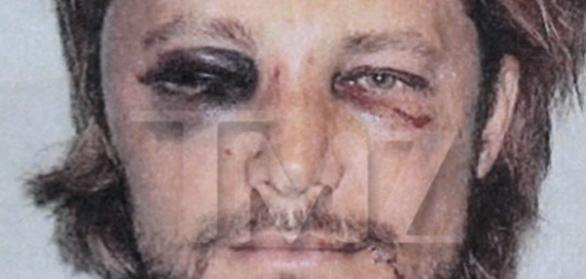 gabriel aubry beaten face