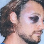Police Say Gabriel Aubry Responsible for His Own Beatdown