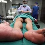 Extremely Poor Chinese Boy with 'Balloon Feet' Receives Free Surgery