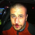 George Zimmerman's Defense Presents Improved Bloodied Photo