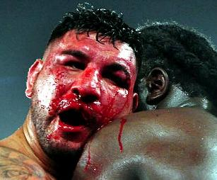 arreola bloody face