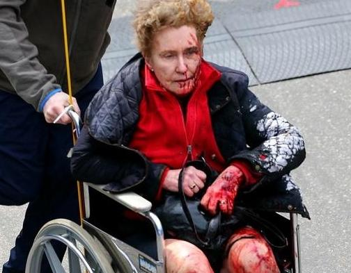 boston bombing (bloodied woman in wheelchair)