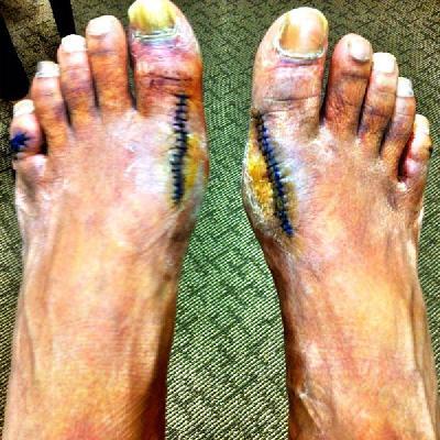 slim thug feet