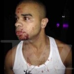 Report: Raz-B Comatose After Bottle to Face Incident – Now on Life Support!