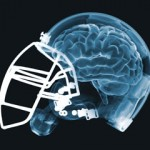 EUR Perspective: The New 'Insider' Takes on NFL Concussions
