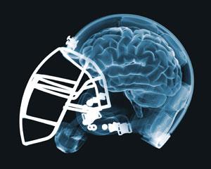brain - helmet