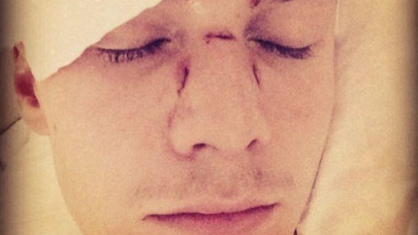Barron Hilton after being assaulted