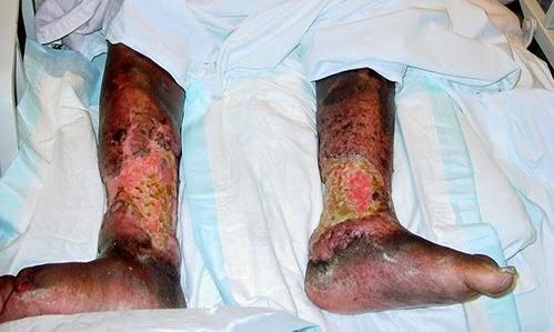 diabetes legs & feet