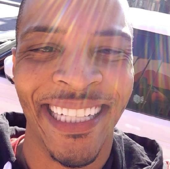 ti teeth