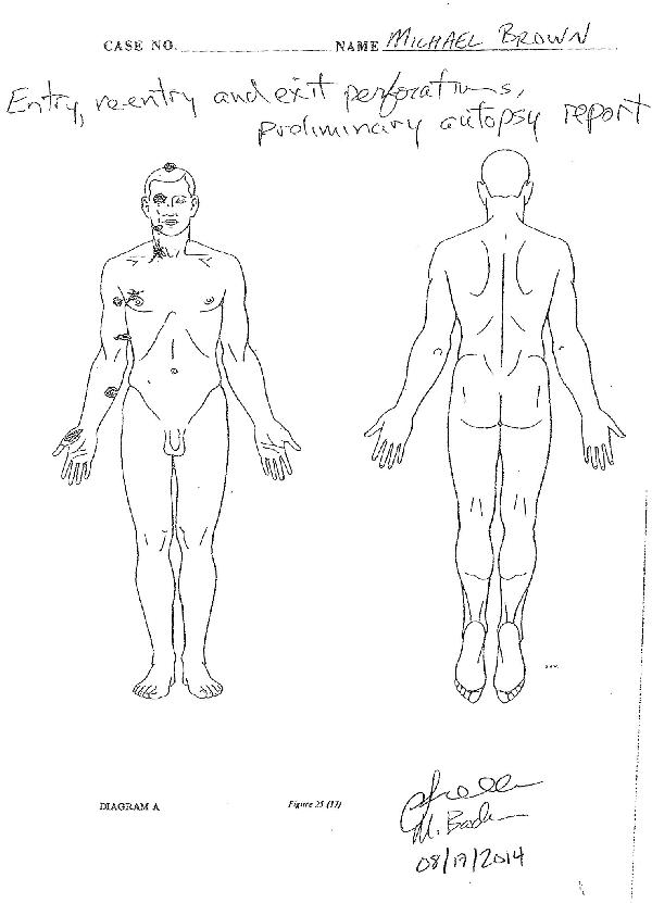 michael brown autopsy bullet wounds illustration