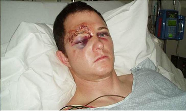 Bogus Injury Photo of Darren Wilson Goes Viral