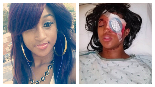 Dornella Conners Loses Eye from Police Bean Bag Shot