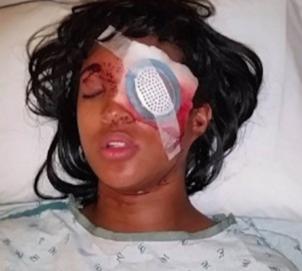 dornella connors (eye injury)