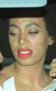 solange knowles hives