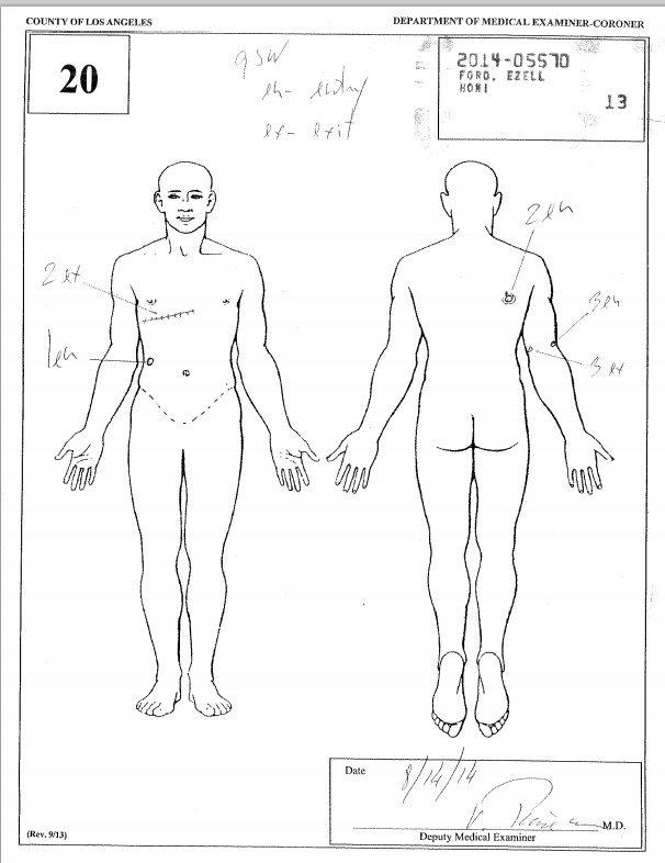 ezell ford medical examiner drawing