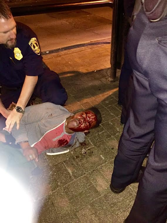 martese johnson (bloody)