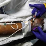 Black Kids Given Less Pain Meds in ER Than White Kids, Research Shows