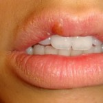 You Got Herpes? So Does Almost Everyone Else: New Study