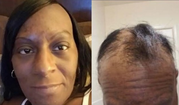 L'Oreal Sued by Woman (Delicia Taylor) for Relaxer that Burned Her Bald