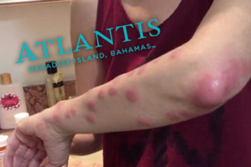 atlantis-bahamas-bed-bug bites on arm