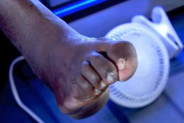 shaq's gross foot