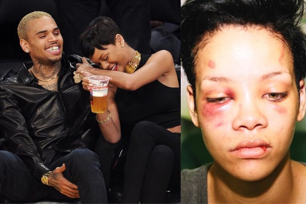 rihanna battered face