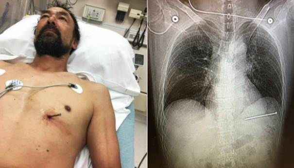 USA man survives after shooting himself in heart with nail gun