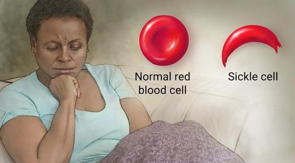 sickle cell1
