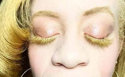 Legally Blind Albino Makeup Artist