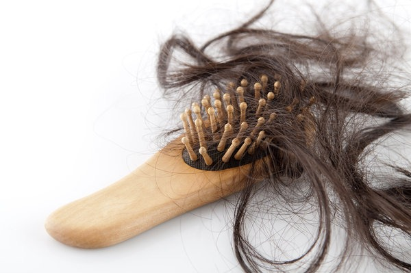 Hair loss (Yay images)
