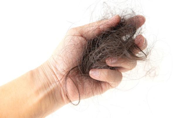 Hair loss - hand full of hair - (Yay images)