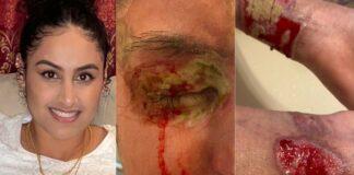 Help Nafiah, acid attack survivor, get justice