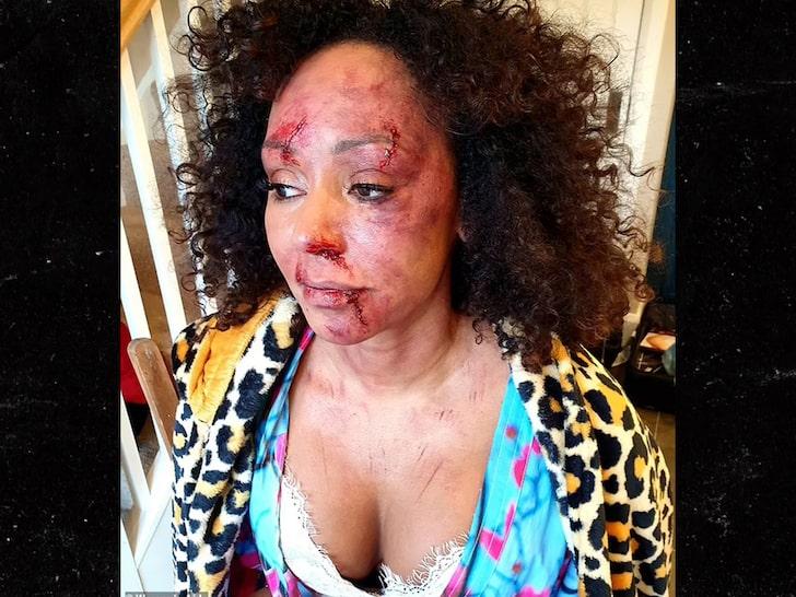 Mel B (bruised & bloodied)