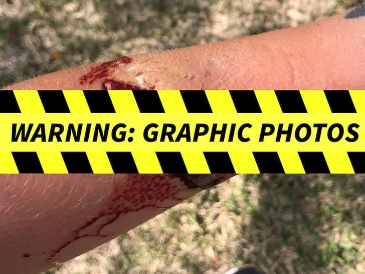 Ezekiel Elliott dog bite pic warning